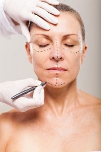 senior woman preparing for plastic surgery