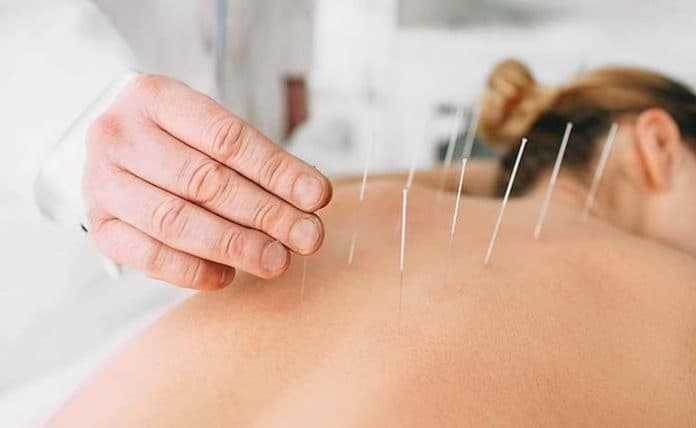 accupuncture advice