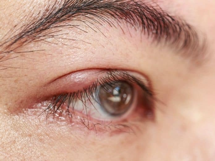 The Most Common Infections of the Eye