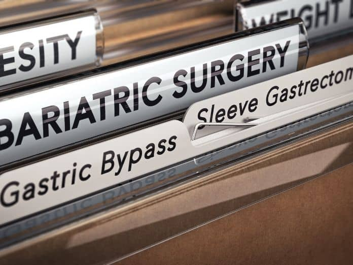 Things To Consider Before Getting Weight Loss Surgery